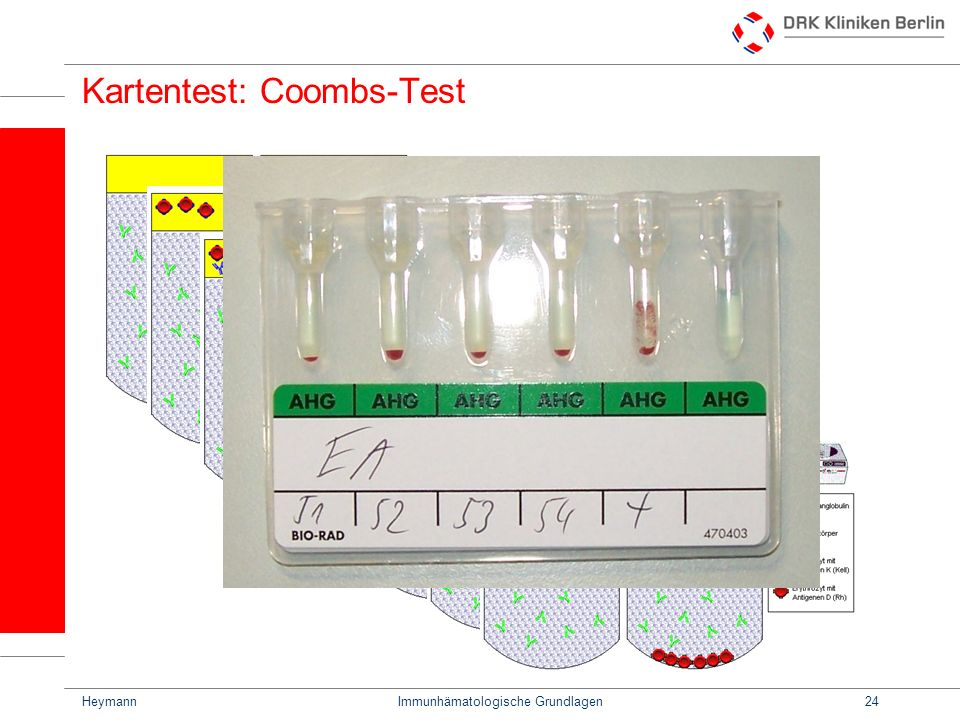 Kartentest: Coombs-Test