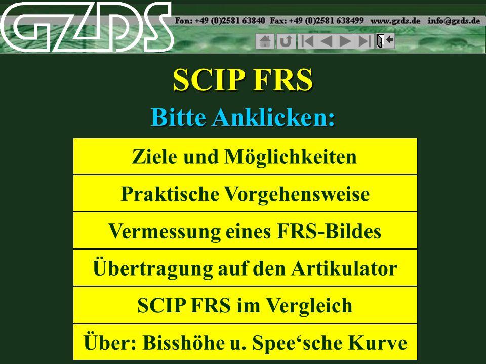 SCIP FRS Bitte Anklicken: Ziele und Möglichkeiten