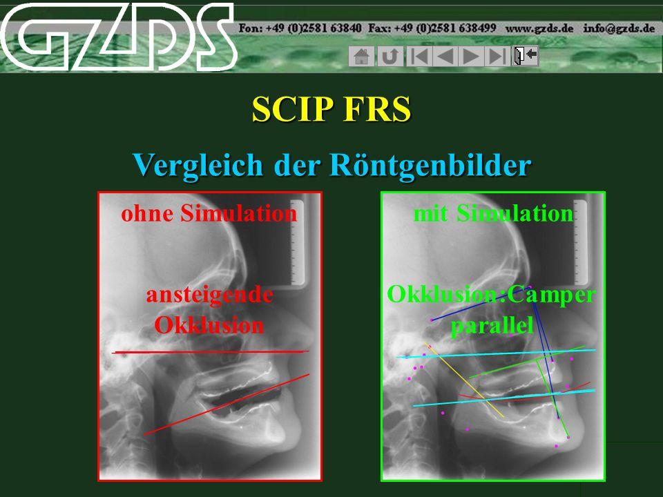 SCIP FRS Vergleich der Röntgenbilder ohne Simulation mit Simulation