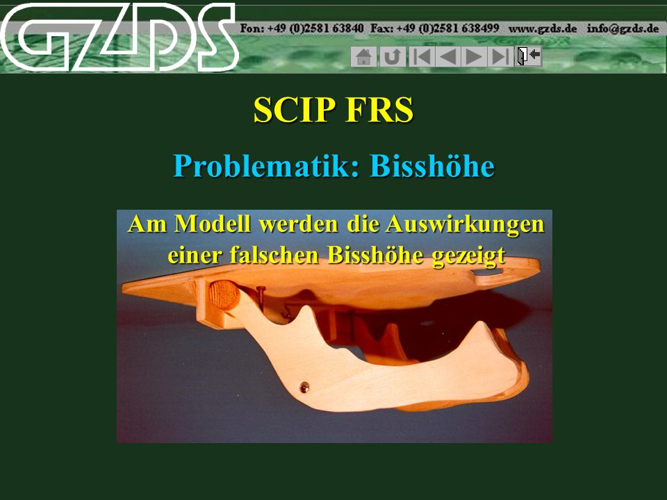 SCIP FRS Problematik: Bisshöhe
