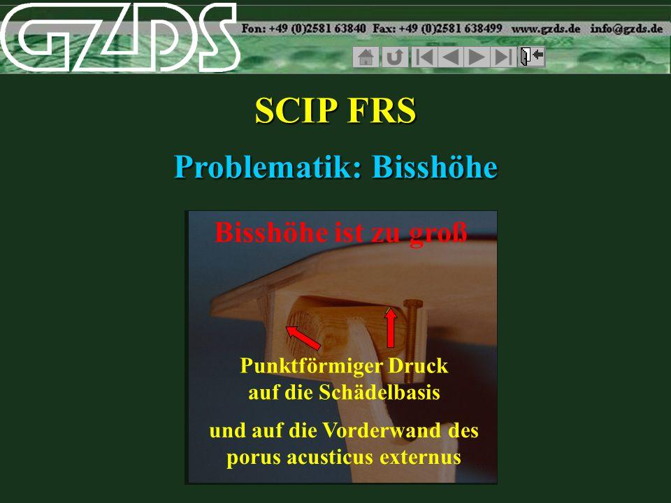 SCIP FRS Problematik: Bisshöhe Bisshöhe ist zu groß