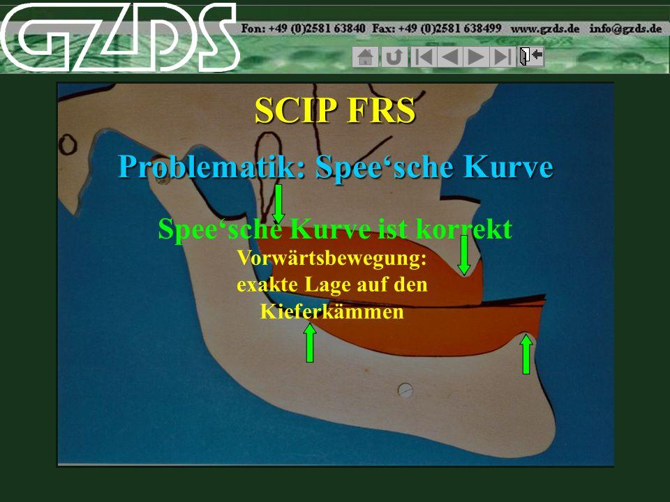 SCIP FRS Problematik: Spee'sche Kurve Spee'sche Kurve ist korrekt