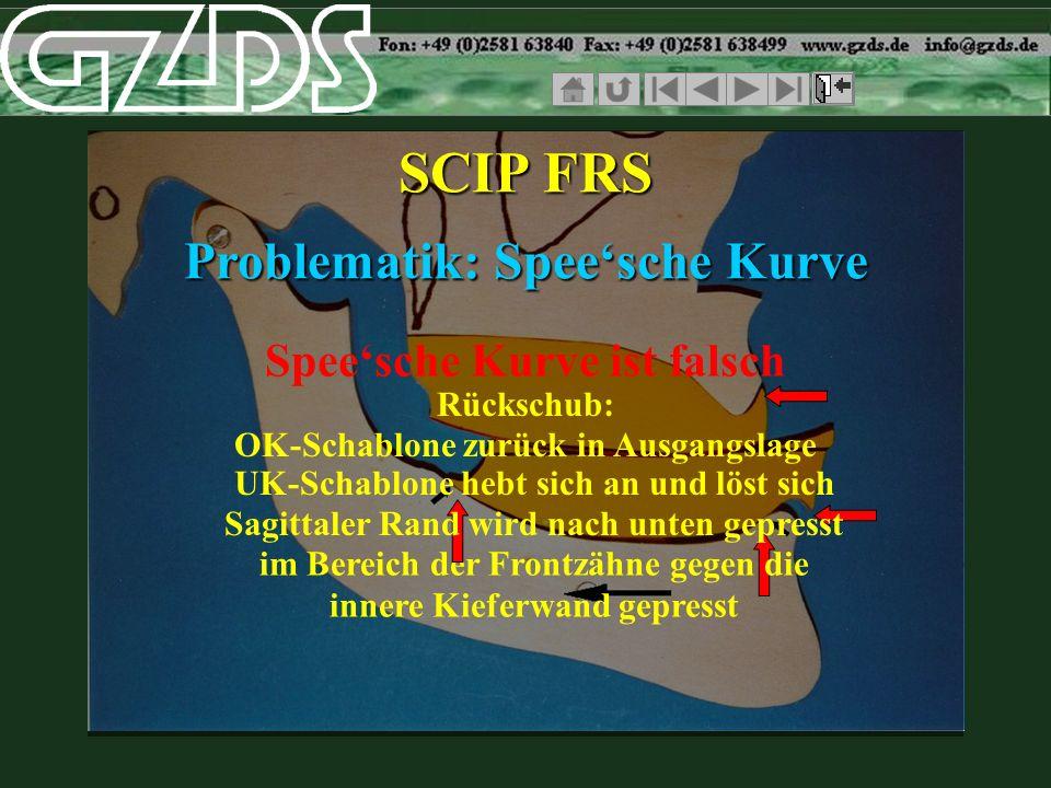 SCIP FRS Problematik: Spee'sche Kurve Spee'sche Kurve ist falsch