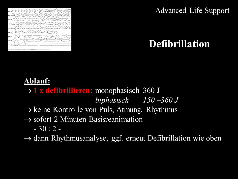 Defibrillation Advanced Life Support Ablauf:
