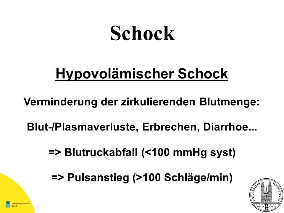 Schock Hypovolämischer Schock