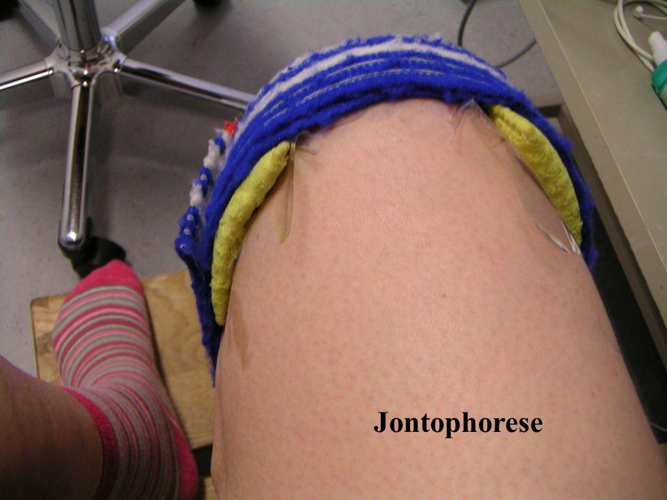Jontophorese