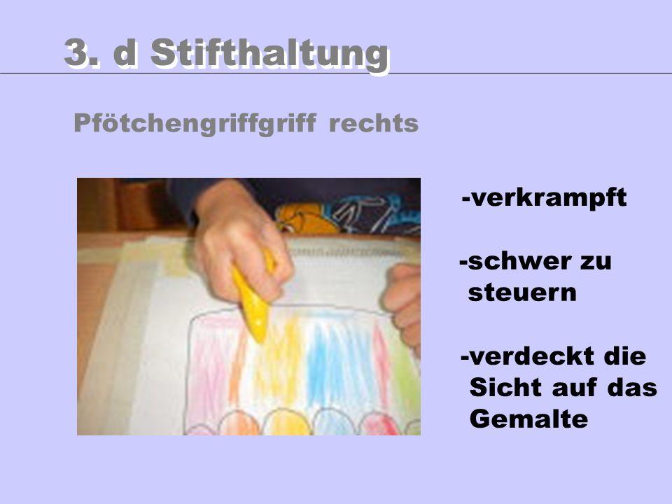 3. d Stifthaltung Pfötchengriffgriff rechts verkrampft