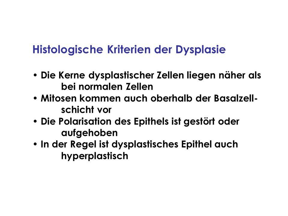 Histologische Kriterien der Dysplasie