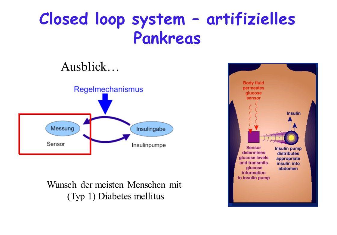 Closed loop system – artifizielles Pankreas