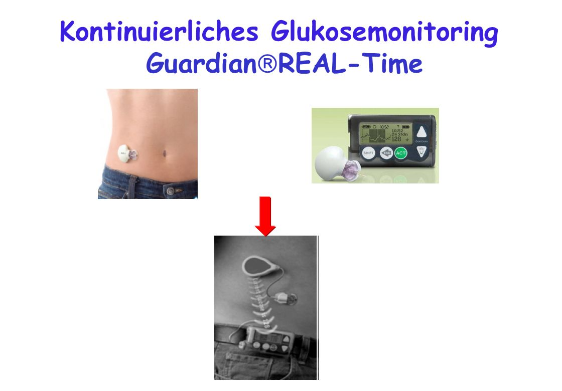 Kontinuierliches Glukosemonitoring GuardianREAL-Time