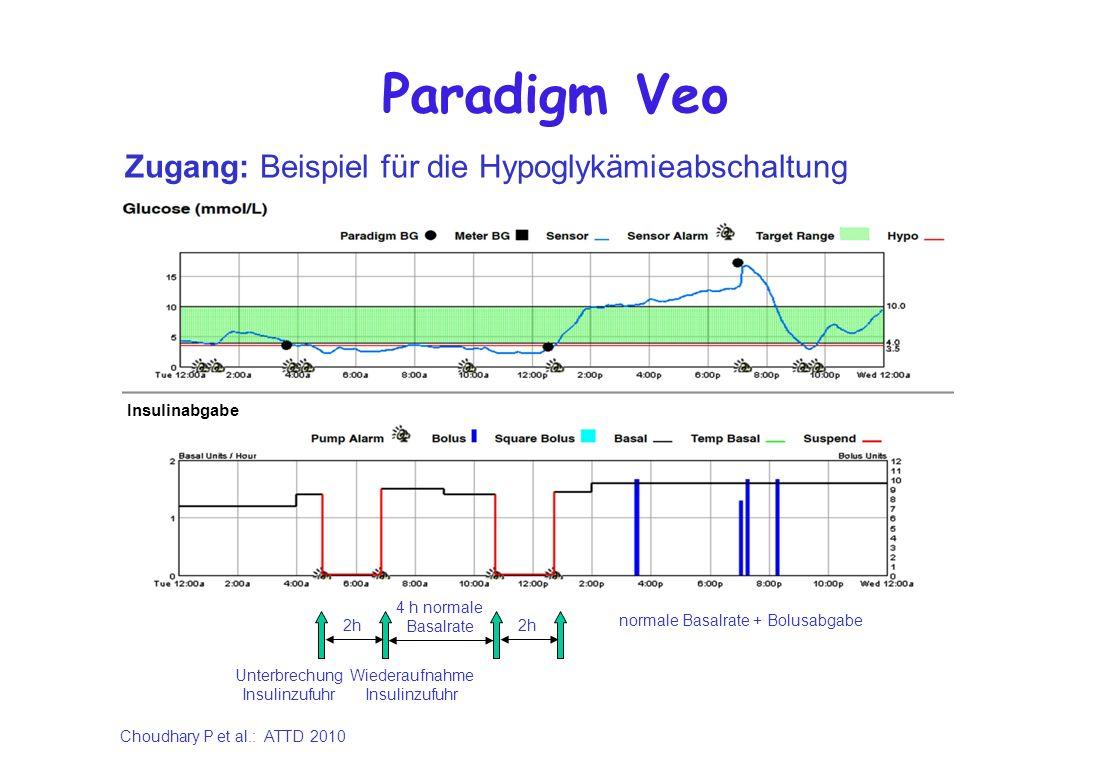 Paradigm Veo Zugang: Beispiel für die Hypoglykämieabschaltung