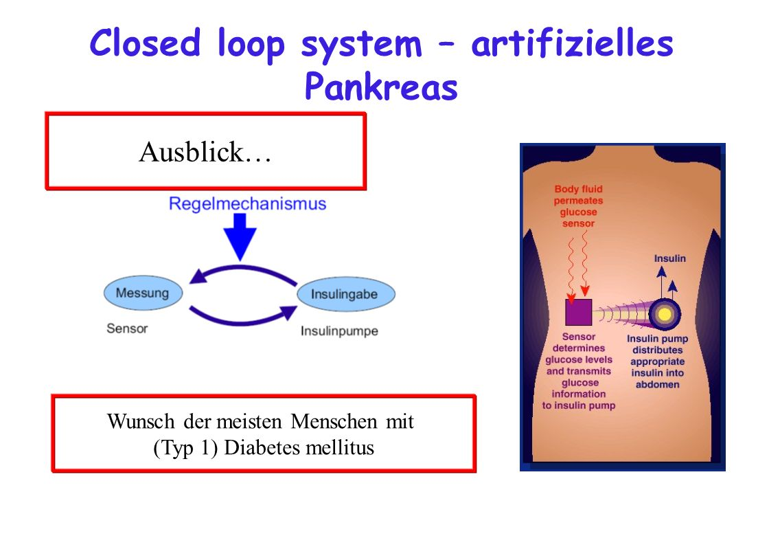 Closed loop system – artifizielles Pankreas