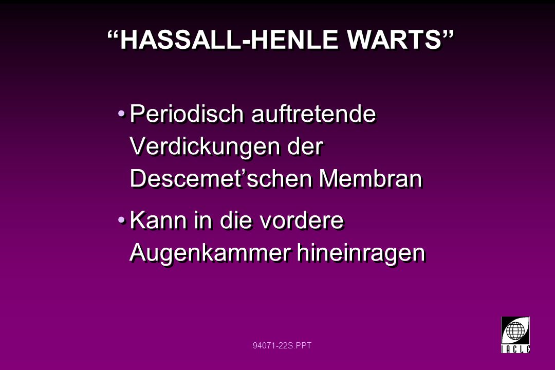 HASSALL-HENLE WARTS