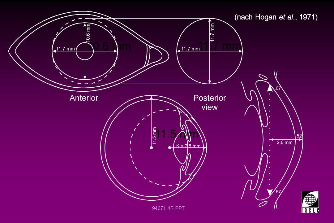 (nach Hogan et al., 1971) 10.6 mm 11.7 mm 11.5 mm 12 12