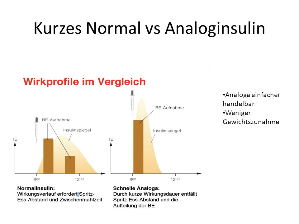 Kurzes Normal vs Analoginsulin