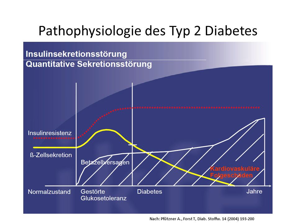 Pathophysiologie des Typ 2 Diabetes