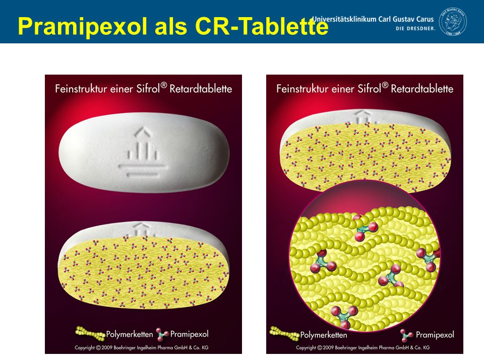 Pramipexol als CR-Tablette