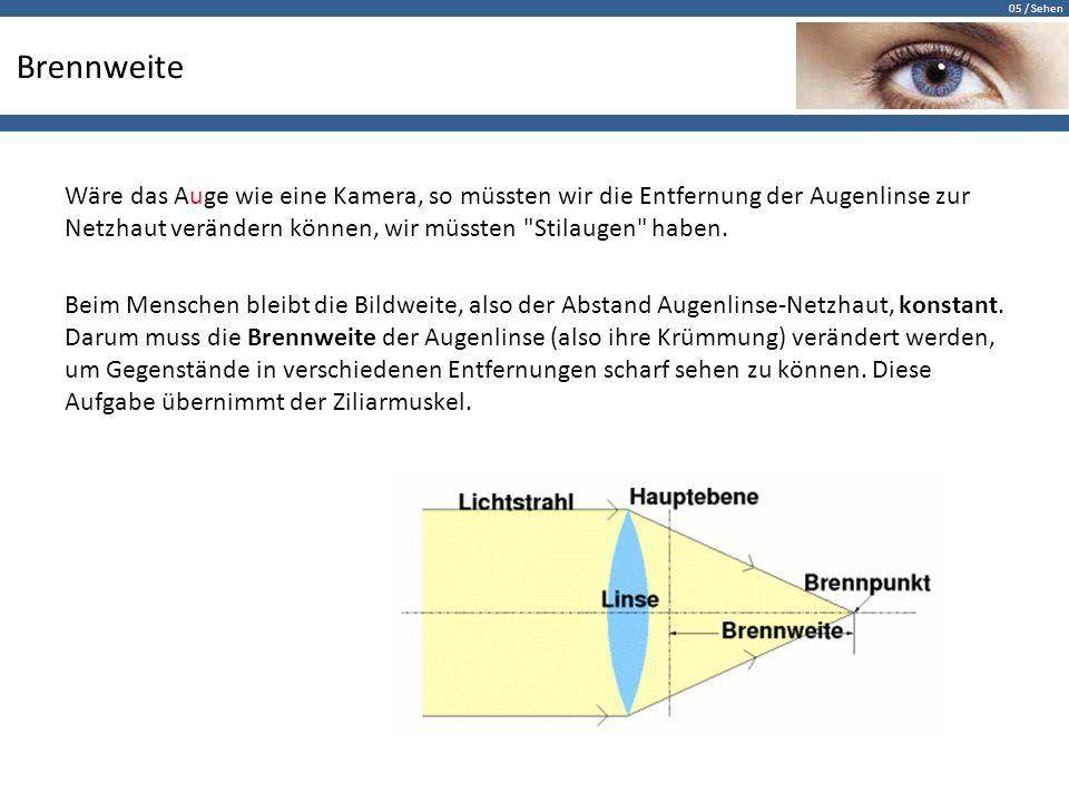 Fein Augenlinse Anatomie Bilder - Menschliche Anatomie Bilder ...