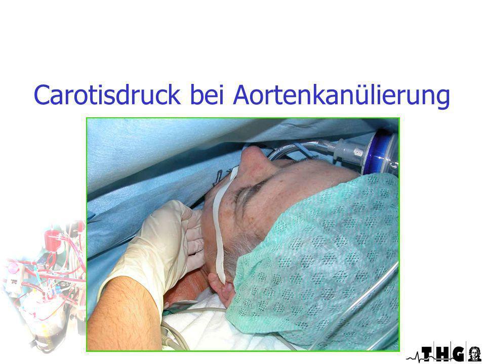 Carotisdruck bei Aortenkanülierung