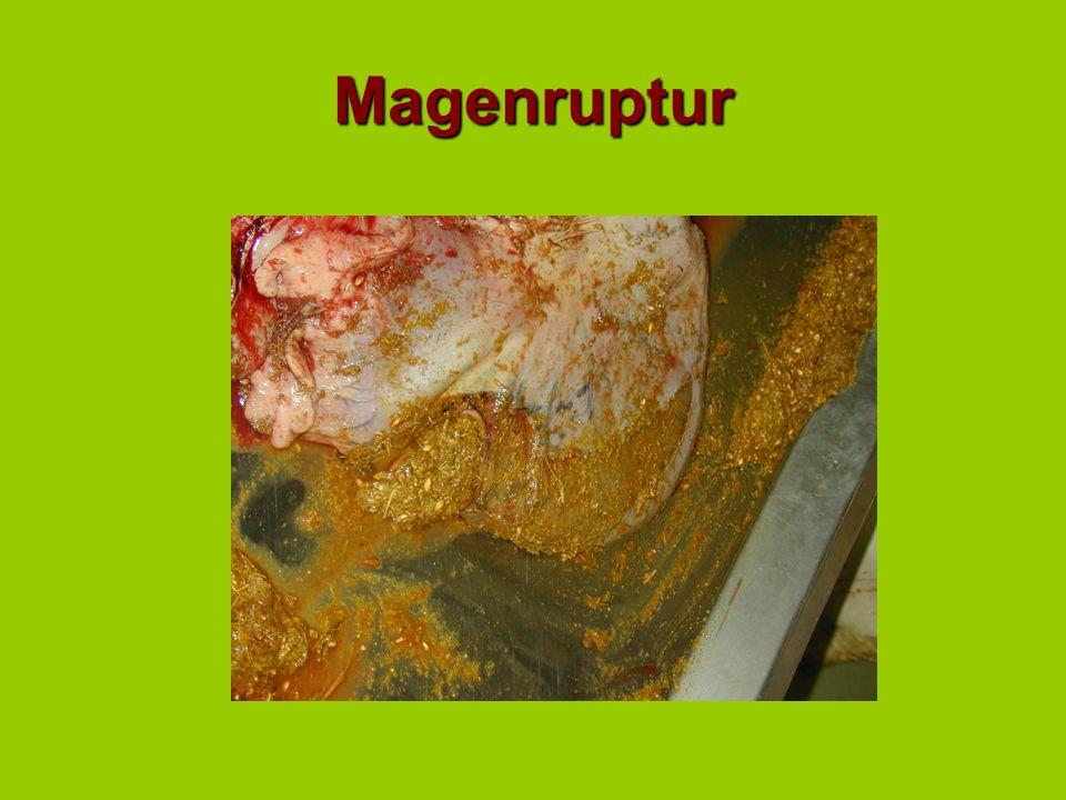 Magenruptur
