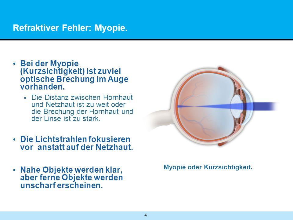 Refraktiver Fehler: Myopie.