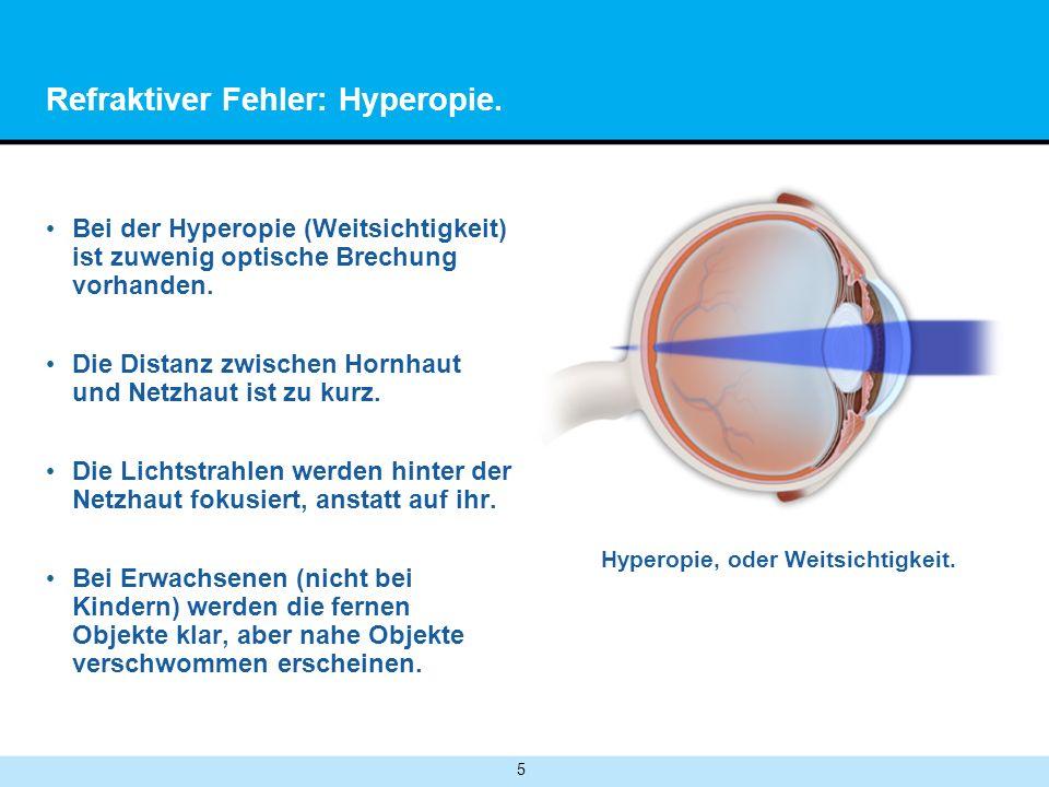 Refraktiver Fehler: Hyperopie.