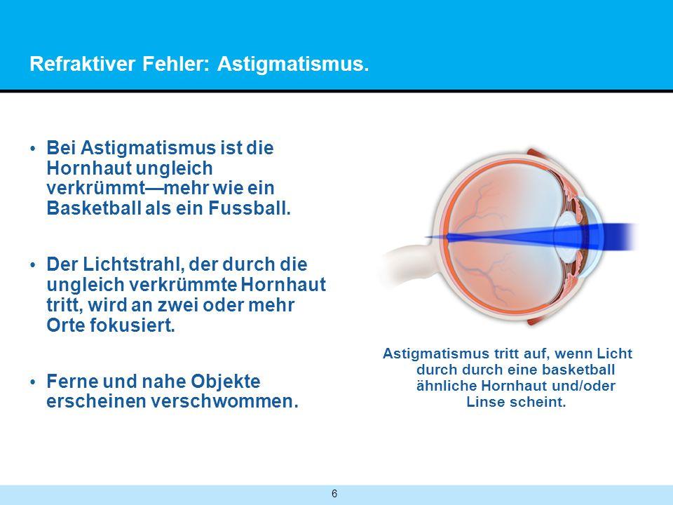 Refraktiver Fehler: Astigmatismus.