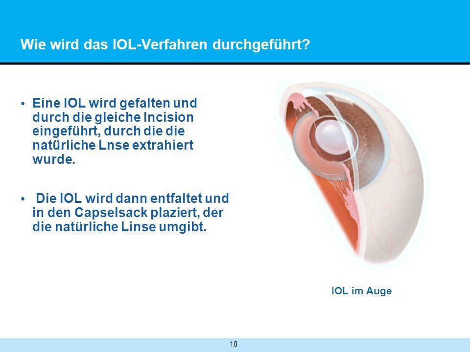 Wie wird das IOL-Verfahren durchgeführt