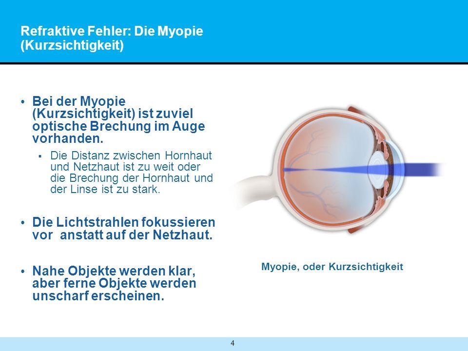 Refraktive Fehler: Die Myopie (Kurzsichtigkeit)