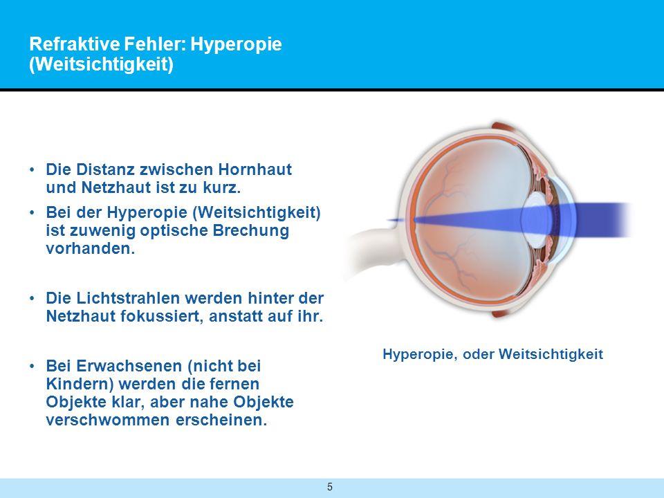 Refraktive Fehler: Hyperopie (Weitsichtigkeit)