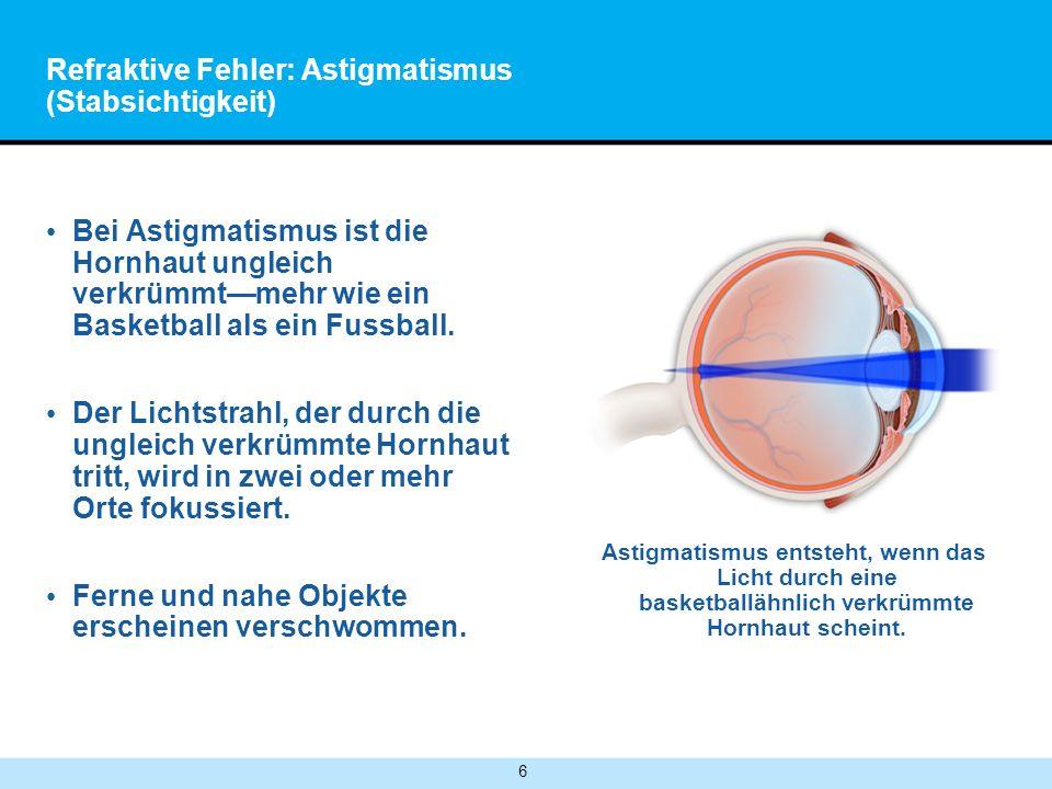 Refraktive Fehler: Astigmatismus (Stabsichtigkeit)
