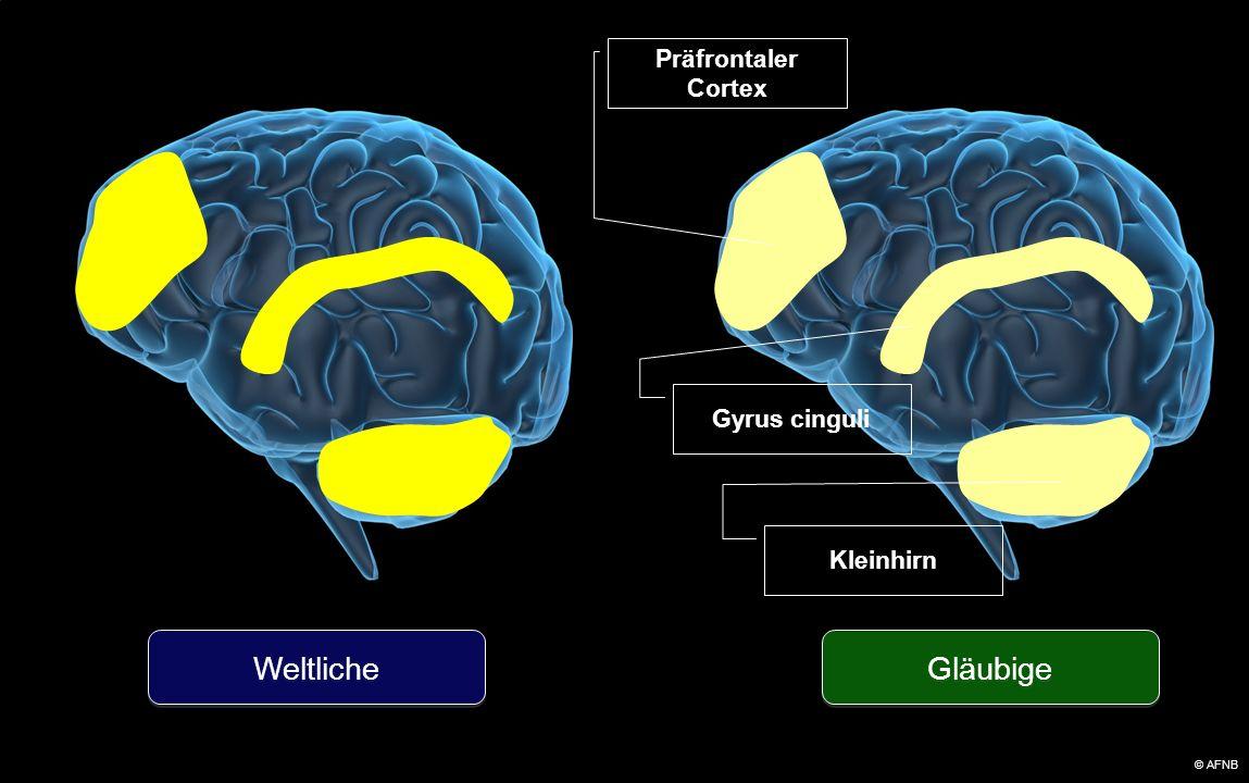 Präfrontaler Cortex Gläubige Weltliche Gyrus cinguli Kleinhirn © AFNB