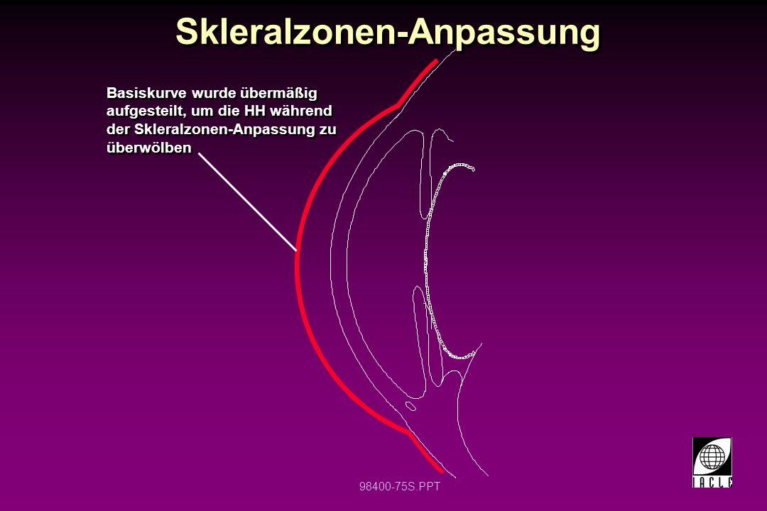 Skleralzonen-Anpassung