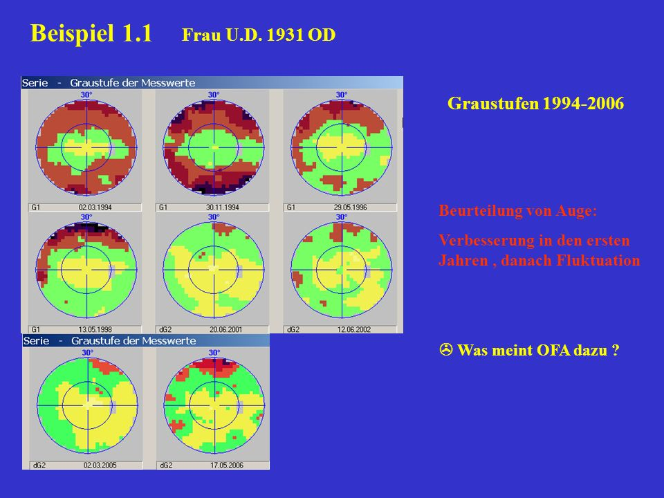 Beispiel 1.1 Frau U.D. 1931 OD Graustufen 1994-2006