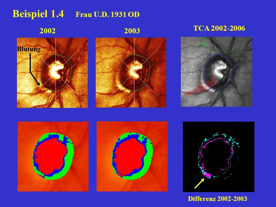 Beispiel 1.4 Frau U.D. 1931 OD TCA 2002-2006 2002 2003 Blutung