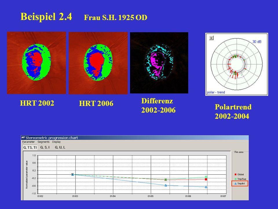 Beispiel 2.4 Frau S.H. 1925 OD Differenz 2002-2006 HRT 2002 HRT 2006