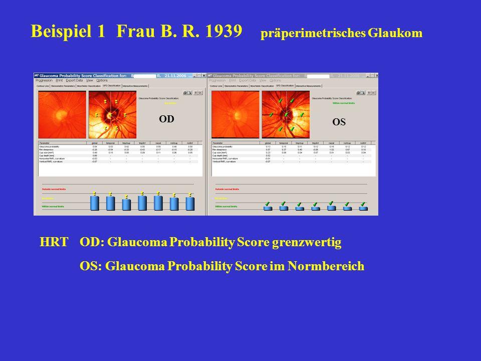 Beispiel 1 Frau B. R. 1939 präperimetrisches Glaukom