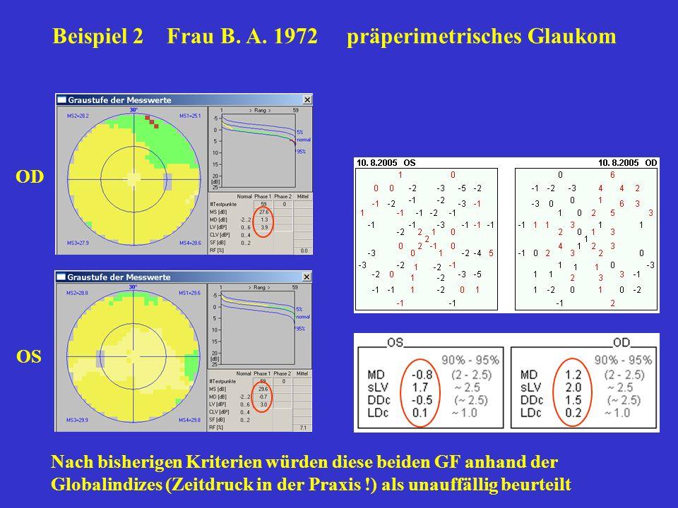 Beispiel 2 Frau B. A. 1972 präperimetrisches Glaukom