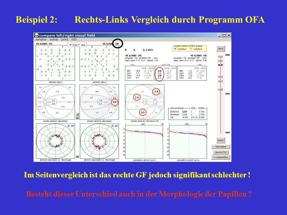 Beispiel 2: Rechts-Links Vergleich durch Programm OFA