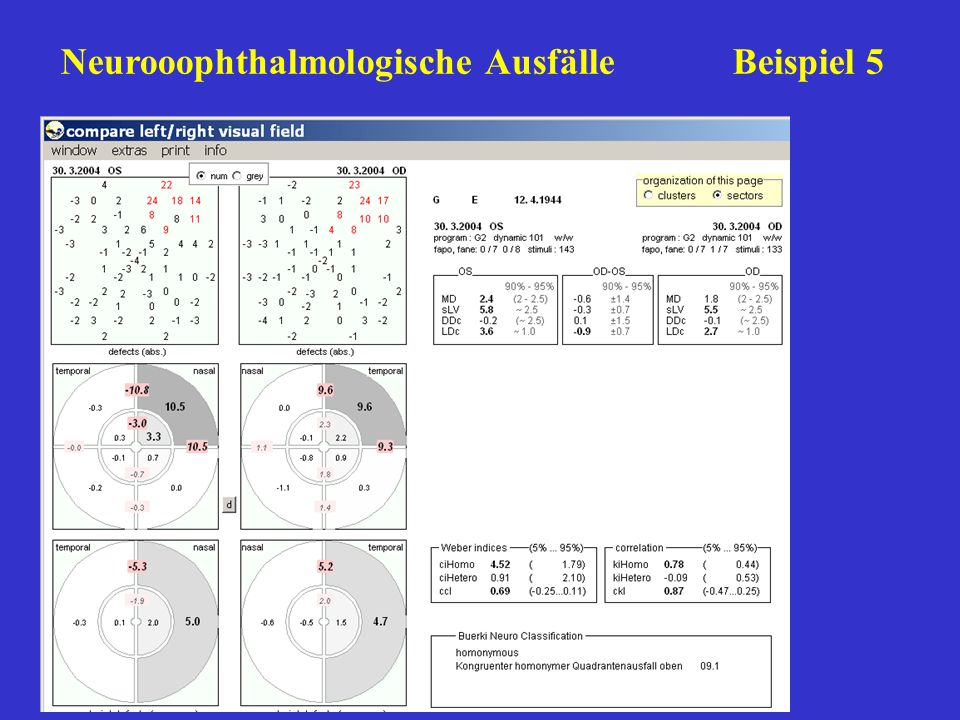 Neurooophthalmologische Ausfälle Beispiel 5