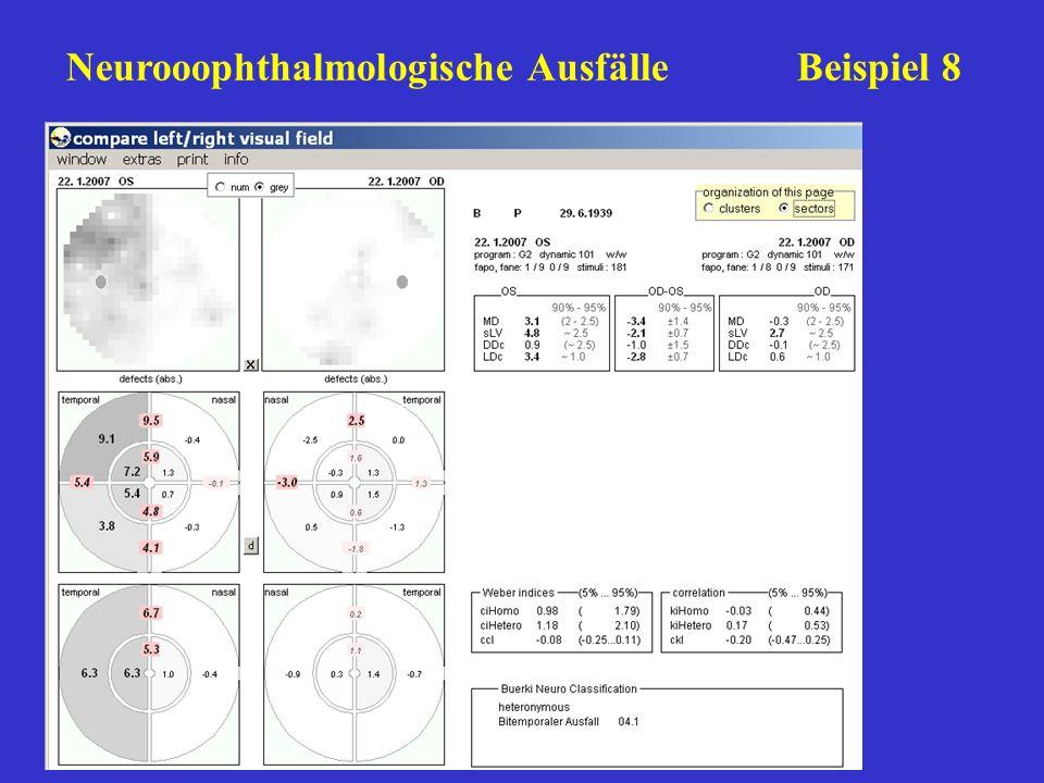 Neurooophthalmologische Ausfälle Beispiel 8