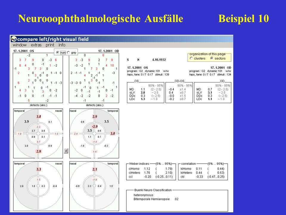 Neurooophthalmologische Ausfälle Beispiel 10
