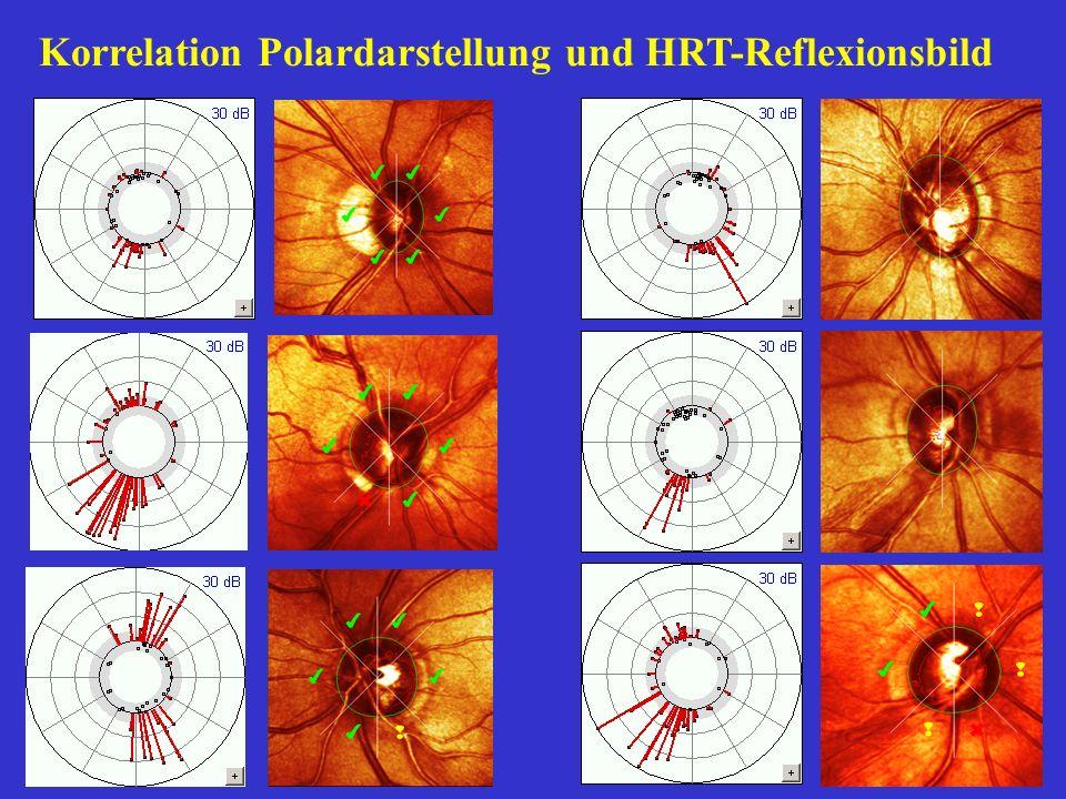 Korrelation Polardarstellung und HRT-Reflexionsbild