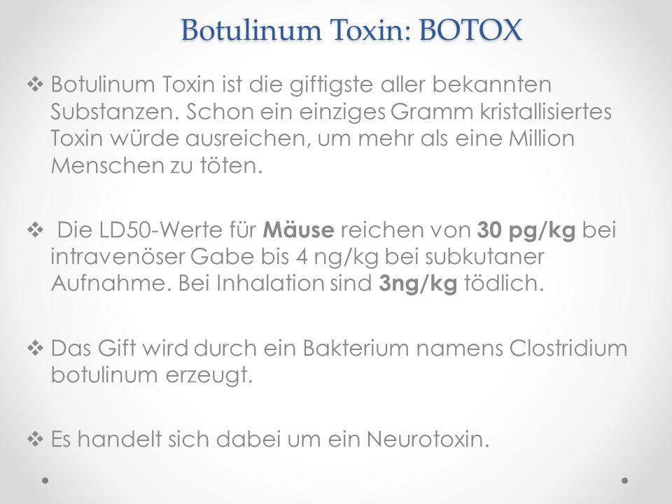 Botulinum Toxin: BOTOX