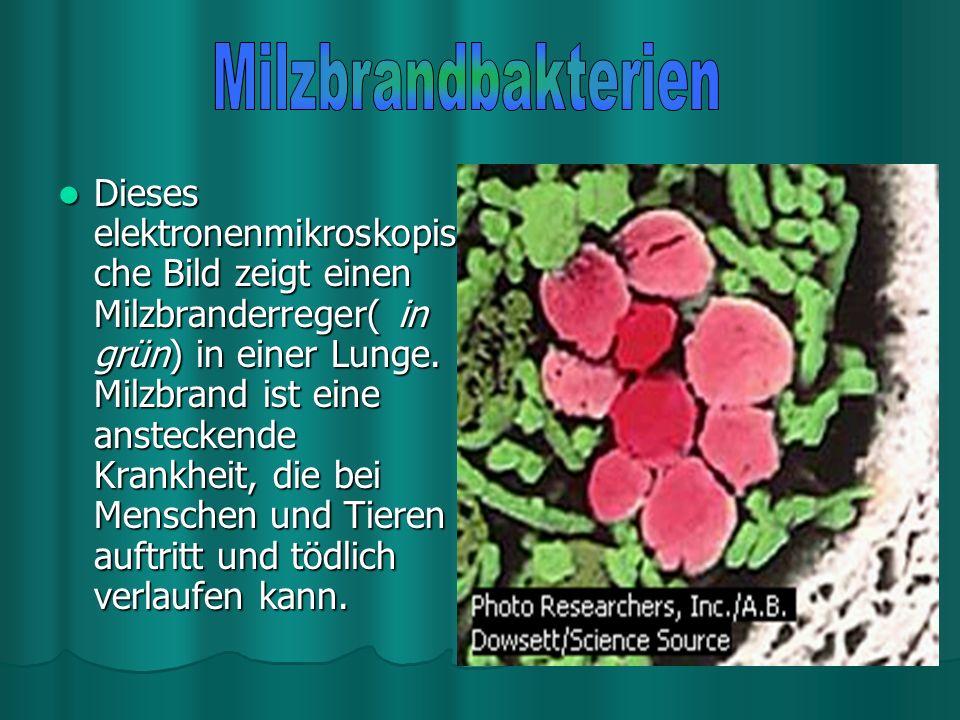 Milzbrandbakterien