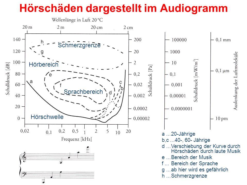 Hörschäden dargestellt im Audiogramm