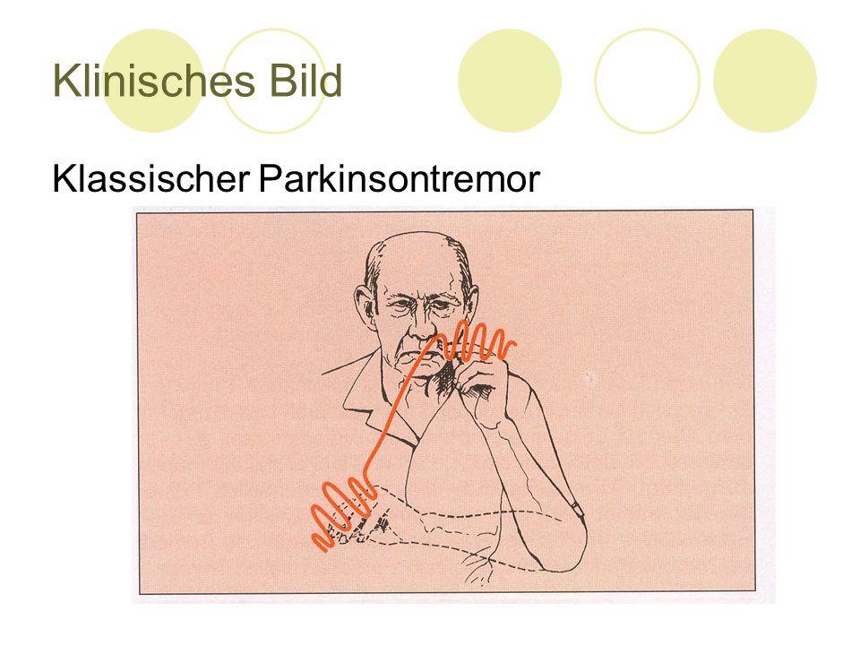 Klinisches Bild Klassischer Parkinsontremor