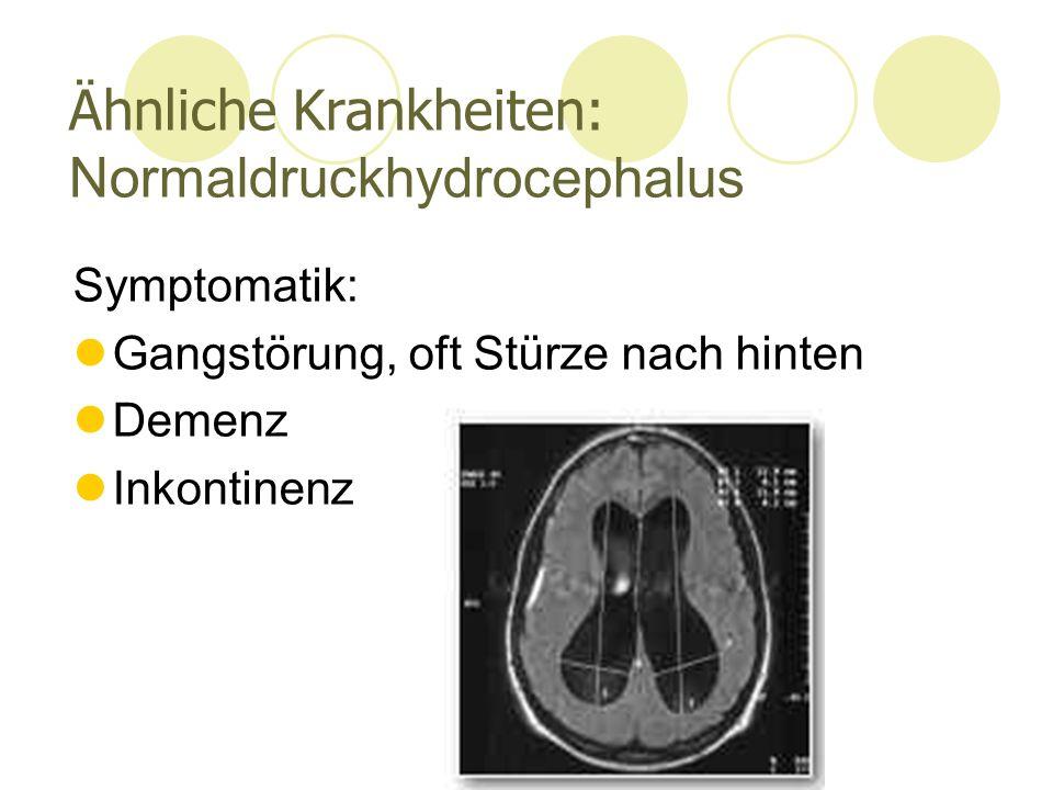 Ähnliche Krankheiten: Normaldruckhydrocephalus