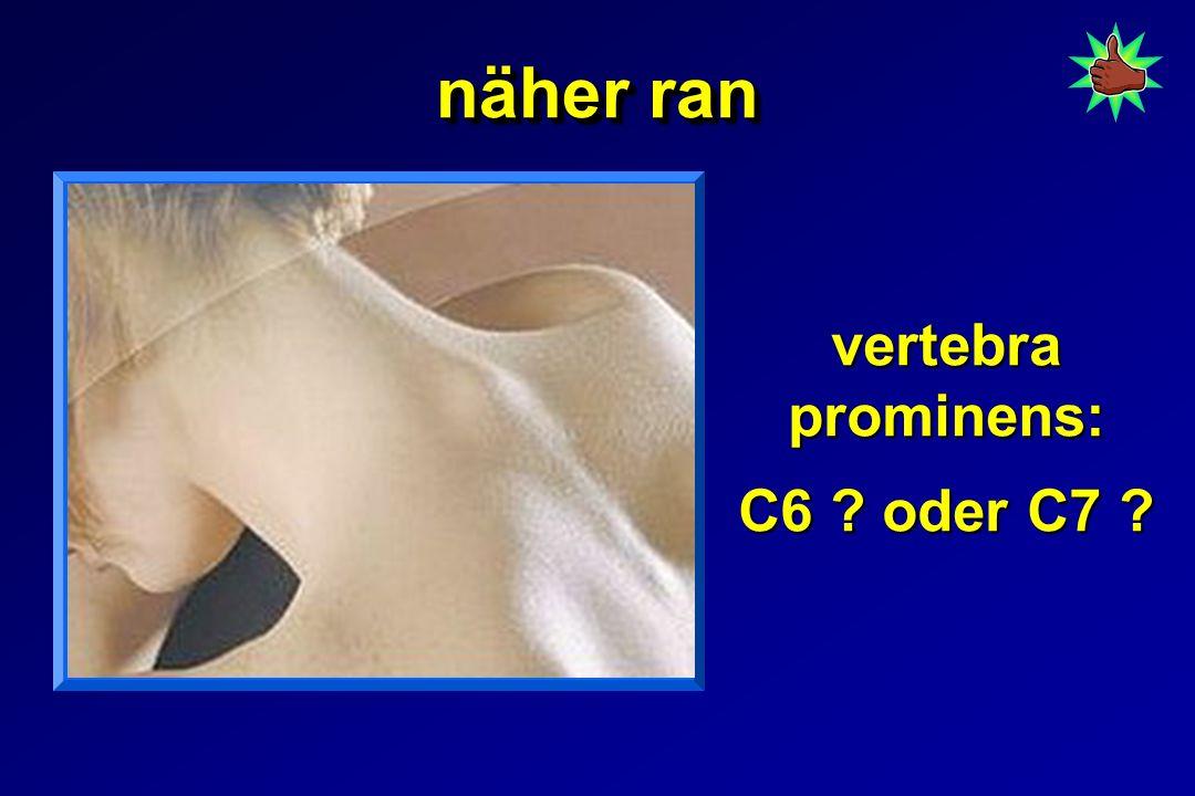 vertebra prominens: C6 oder C7