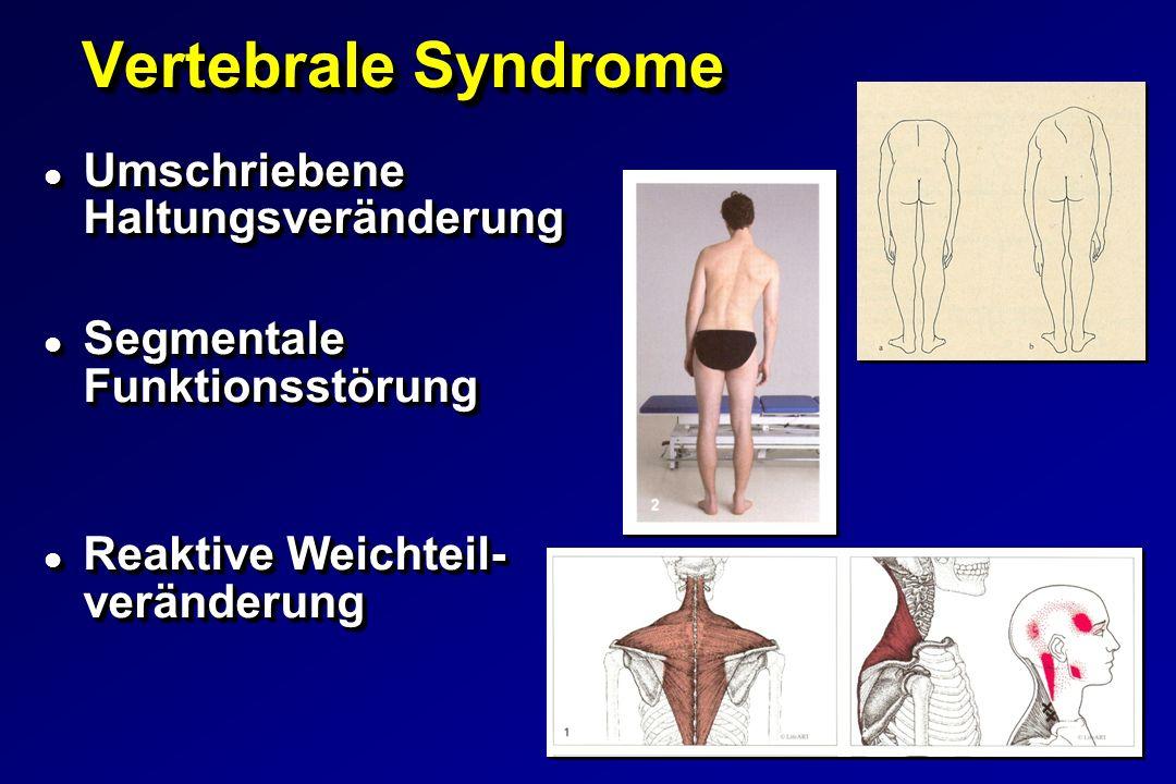 Vertebrale Syndrome Umschriebene Haltungsveränderung
